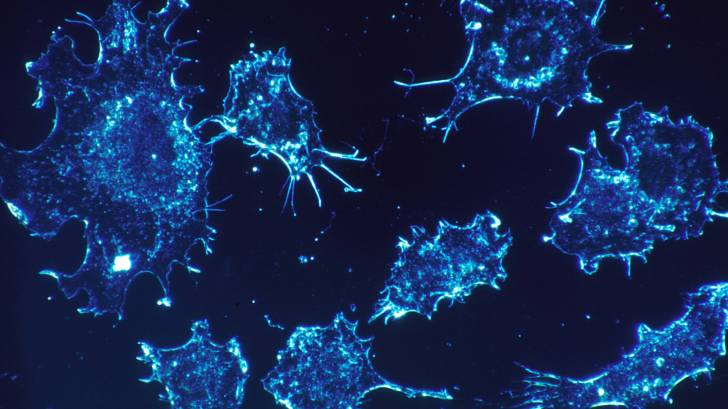 cancer cells in blue